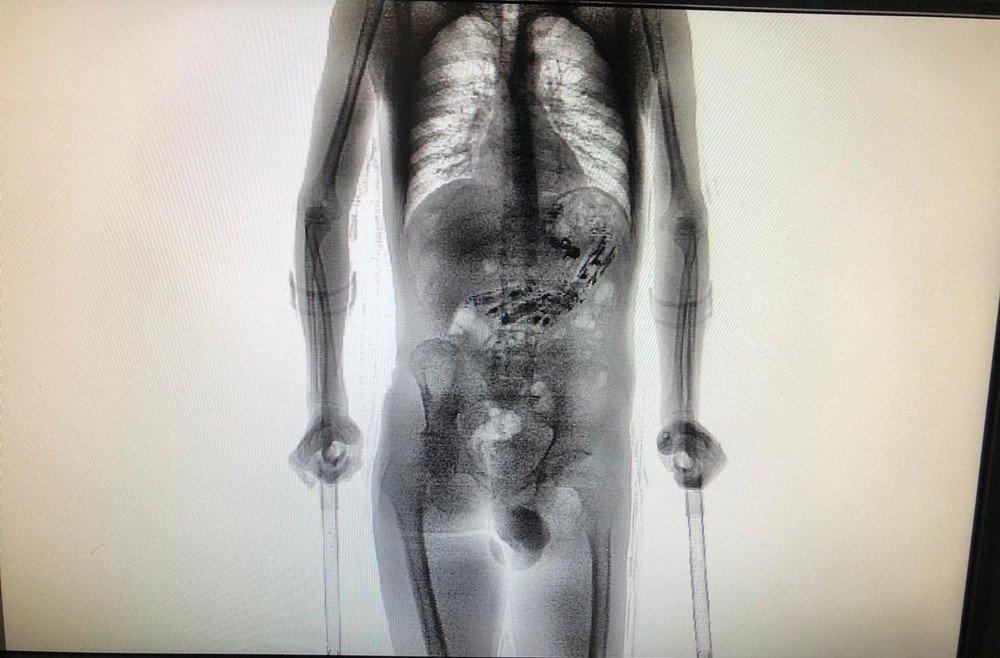 Após retornar de saída temporária, detento de Santa Catarina é flagrado com 9 celulares e 52 objetos no estômago - entre eles cabo USB, isqueiro e drogas https://t.co/QrUvm24BIh #G1