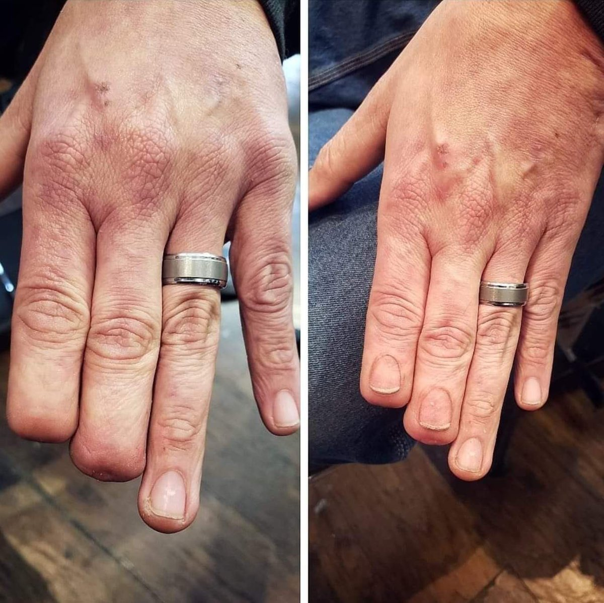 This tattoo artist changed this guys life by tattooing finger nails on his amputated index and middle finger what do y'all think about this?