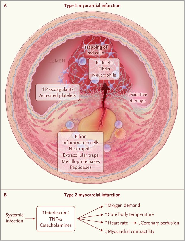 Nejm On Twitter Review Article Acute Infection And Myocardial