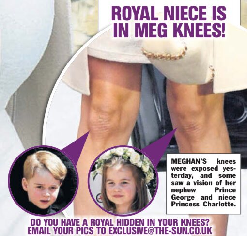 Now I'm not saying Britain's gone completely mad, but do YOU have a royal hidden in your knees?