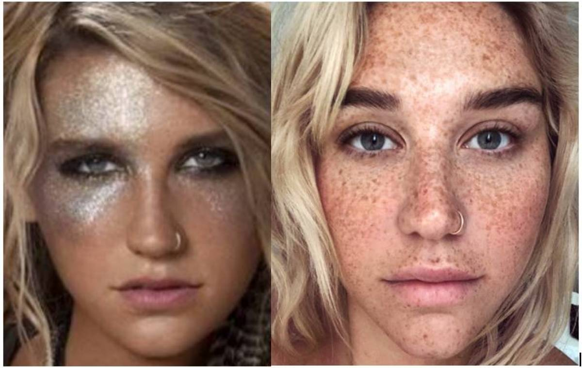 An imperfect Kesha pulls back the curtain on a long-held secret, and good God are her freckles fantastic  http:// ow.ly/6vEM30nm1xM  &nbsp;   #Kesha #freckles <br>http://pic.twitter.com/nFmdsQ2vI8