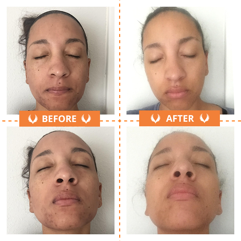 Microneedling Before And After One Treatment