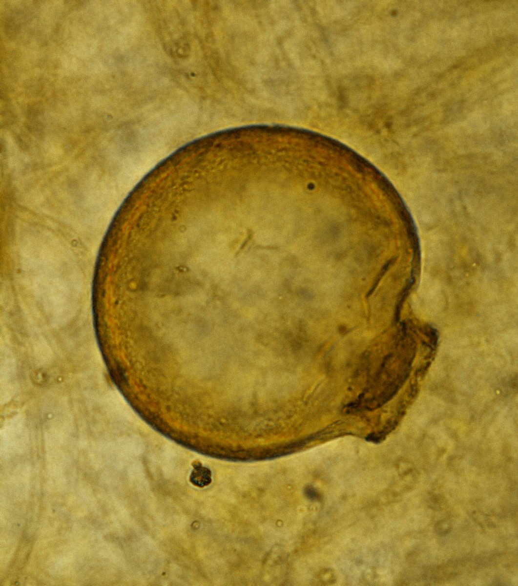 It&#39;s exciting to have a new species here @NHM_London for #FossilFriday - a 407-million year old testate amoebae described from our Rhynie Chert collections, demonstrating the presence of phagotrophic protists in early terrestrial ecosystems - new paper:  https://www. cell.com/current-biolog y/pdf/S0960-9822(18)31610-5.pdf &nbsp; … <br>http://pic.twitter.com/4ojizAdIgT