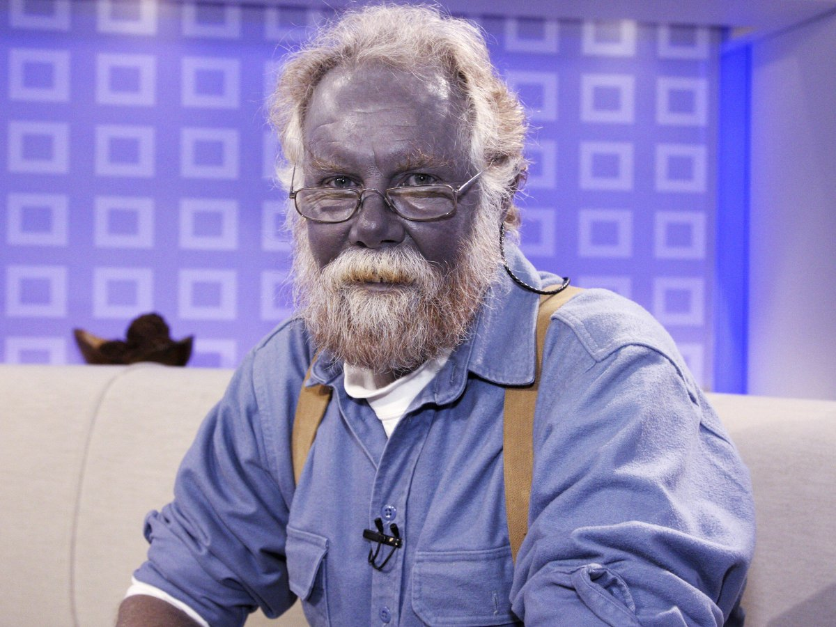 This man turned blue by ingesting a potion made of colloidal silver. Overuse risks turning you blue forever, but users believe it could save your life. More here: https://t.co/kNU5FgJch2