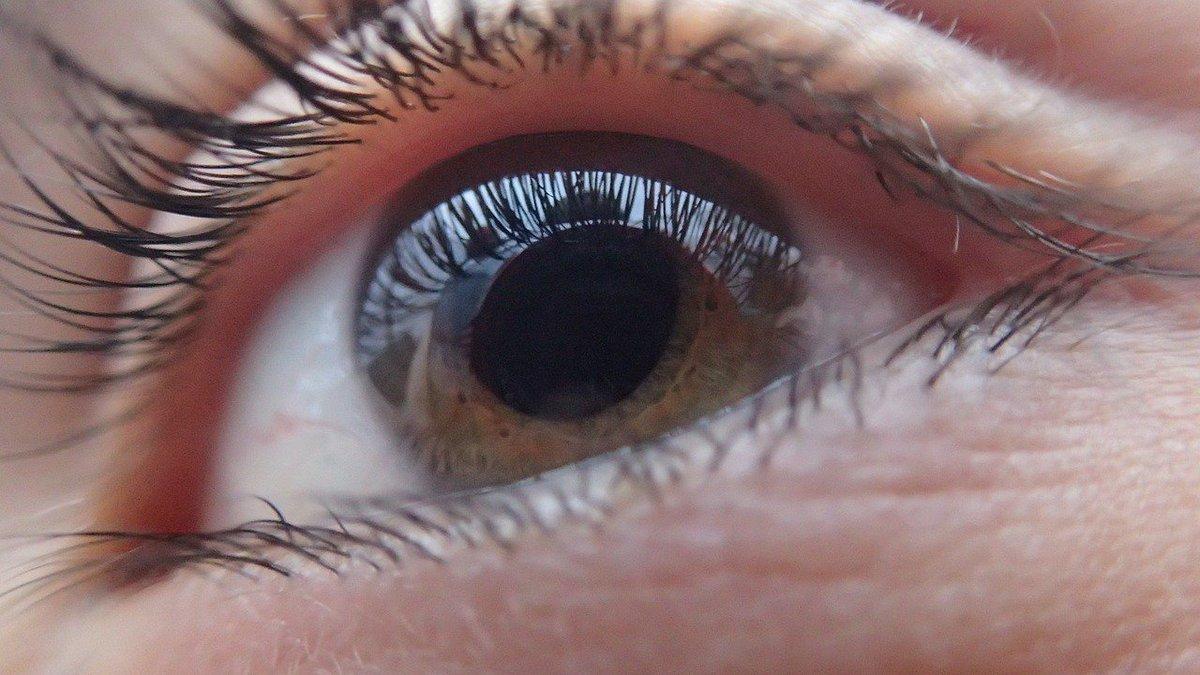 Las #cataratas son zonas nubladas que surgen en el área del cristalino del ojo donde la luz no pasa. Aparecen de forma lenta e indolora. ¡Las revisiones son imprescindibles para detectarlo!