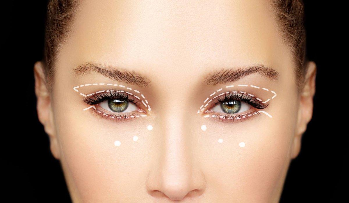drMatteoVigo Eyelid surgery, also known as #blepharoplasty