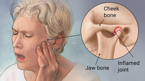 #maxillofacialsurgery #teethgrinder #clenchingteeth #painfree #dentistnearme #painfreedentist #sydney #newsouthwales #ashbury #hurlstonepark #tmjpain #pain #dentalmarketing #affordabledentist #sedationdentist #cosmeticdentistry #injecatable #tmj #nopain