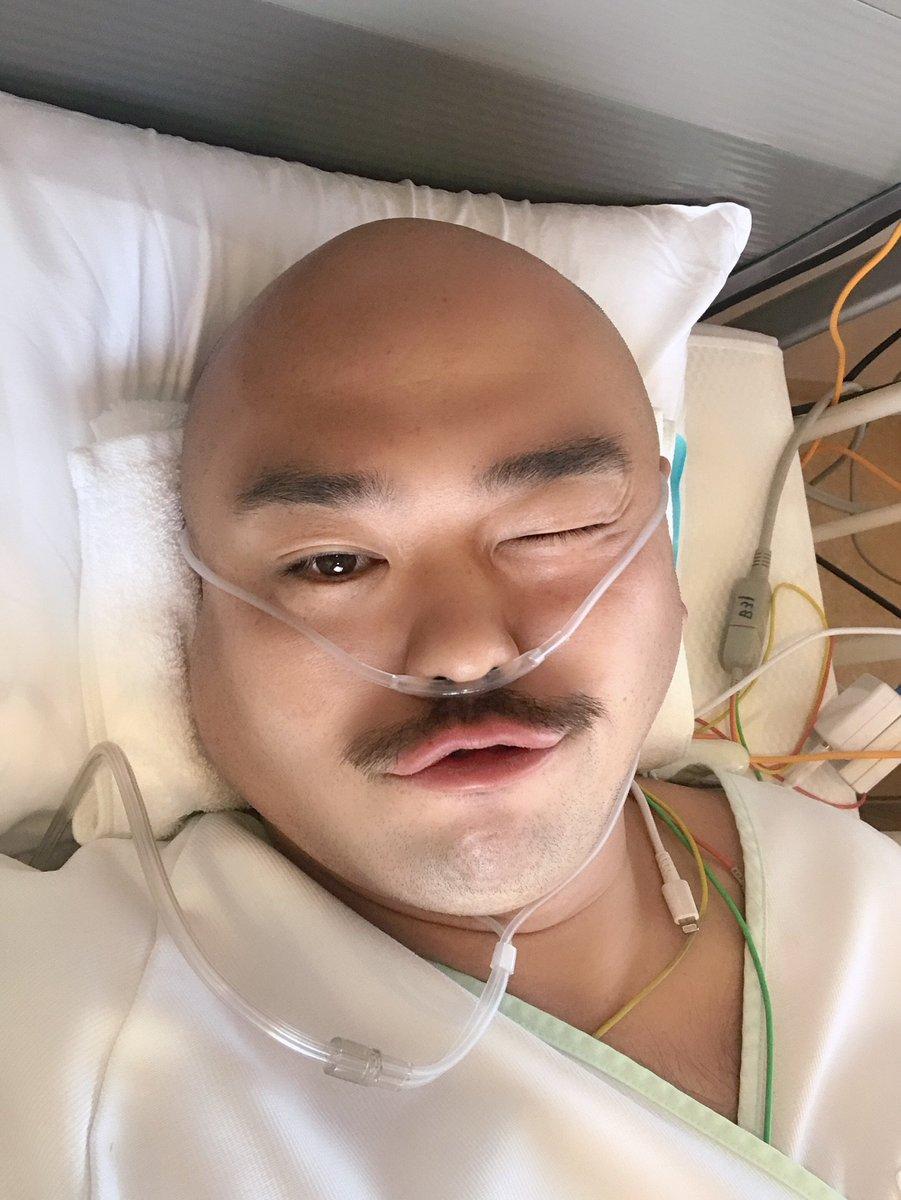 今回の手術に関して色々ありました。 フォロワーのみなさん、心配してくださるツイートなどもたくさんありがとうございました。 それに反応できなくて、すみませんでした。 僕自身、いつになるかなど決まるまで時間がかかったり、入院してるのを言えない状況があり、心が痛かったです。 そして、感謝。