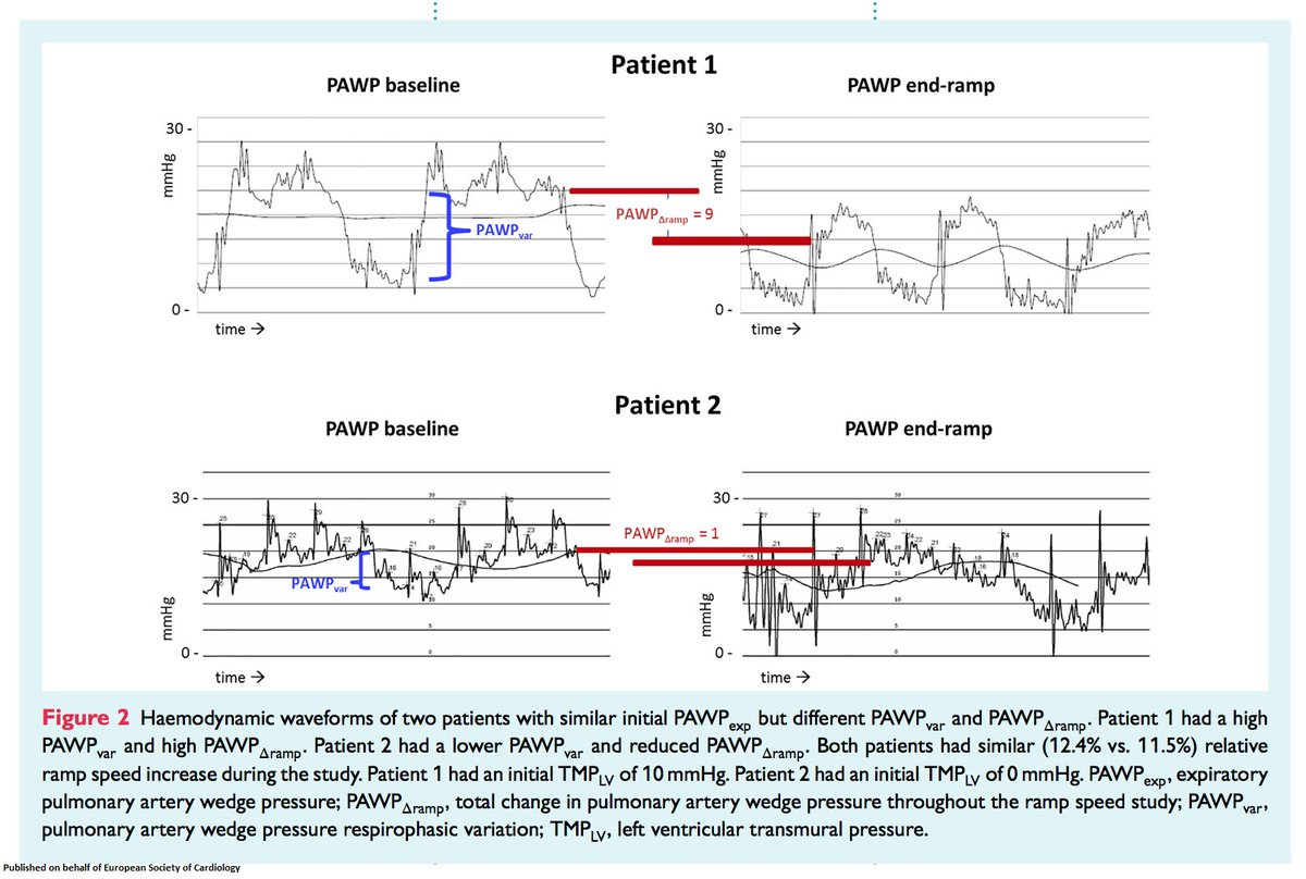 pulmonary artery wedge pressure respiratory variation is correlated with  haemodynamic improvement with increased left ventricular assist