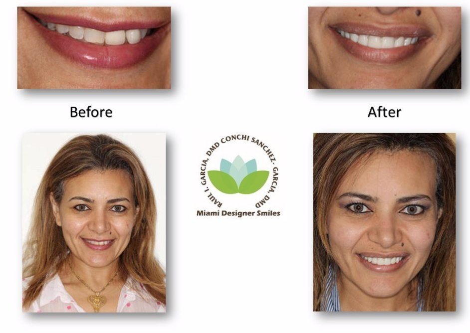 Flashback Friday to when this lovely lady got a gorgeous new smile! #beforeandafter #fbf #miamidentists #cosmeticdentistry #veneers