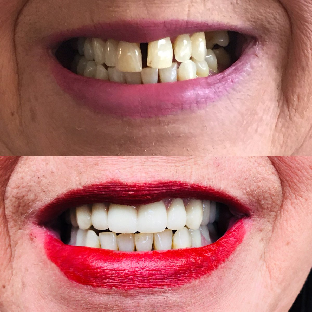 Minuk Denture Clinic On Twitter Another Happy Minuk Denture Clinic