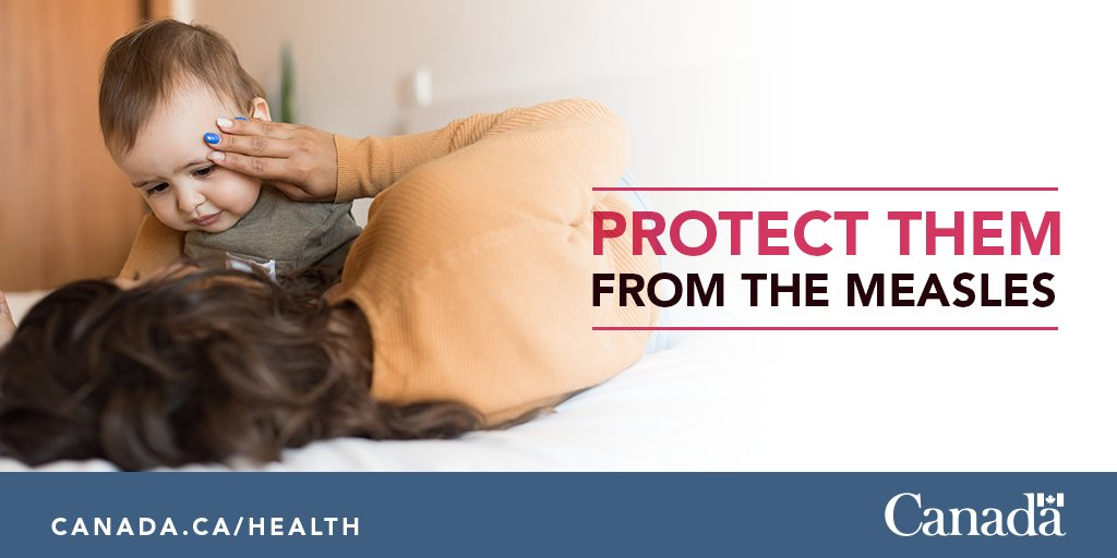 #Measles is a serious and highly contagious disease and can be deadly. Protect yourself and the ones you love from the measles. Ensure their vaccines (and yours) are up to date. http://ow.ly/gr2w30nxZKQ #VaccinesWork