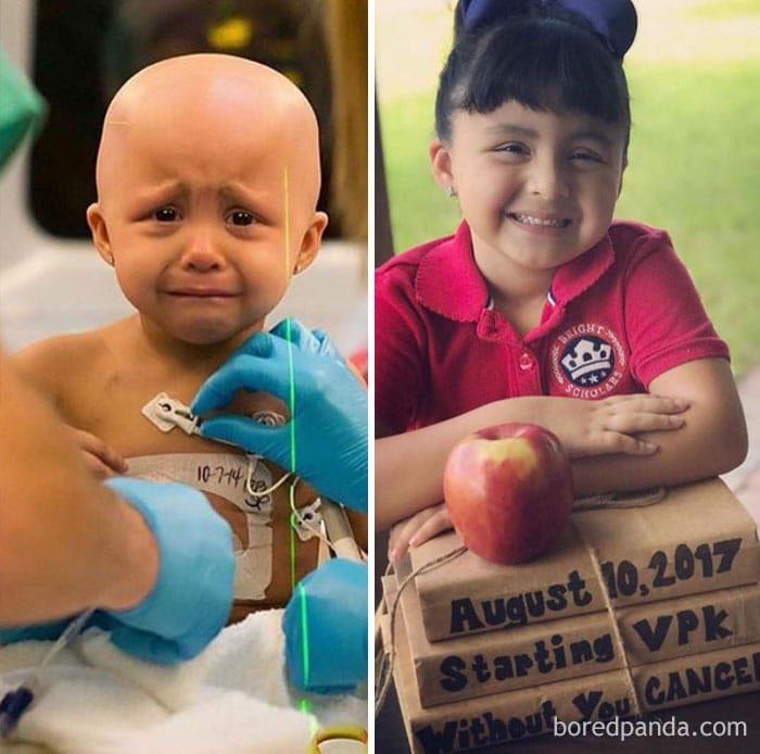 صوفيا  فتاة جميلة أصيبت بالسرطان وهي ذات ٣ سنوات .. وبفضل الله ولحبها للحياة استطاعت هزيمته ..  صورة قبل وبعد التعافي من السرطان🎗️.        #اليوم_العالمي_للسرطان