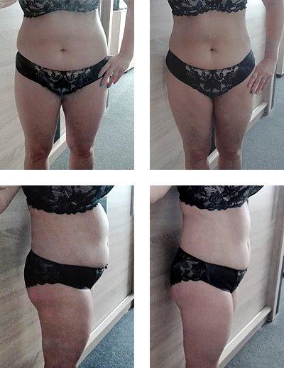 Hypoxi Gewichtsverlust Ergebnisse