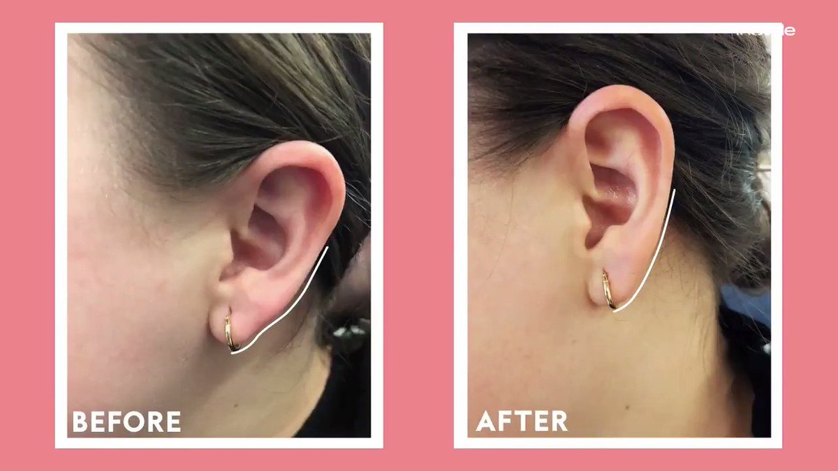 Earlobe fillers (yes, you read that right) are the next big beauty craze, so one InStyle editor put them to the test! See the results for yourself.