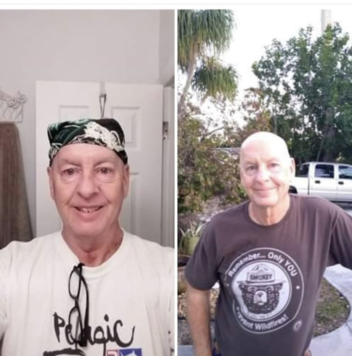 My brother started to lose his hair, so he shaved it off #Beatcancer Scott https://t.co/D93J36UNBG
