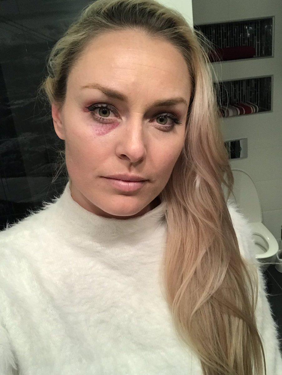 Twitter Lindsey Vonn nude photos 2019