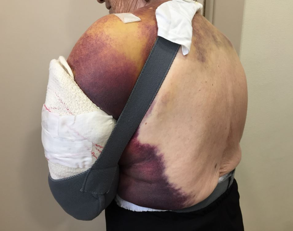 Resultado de imagen de hematoma hennequin