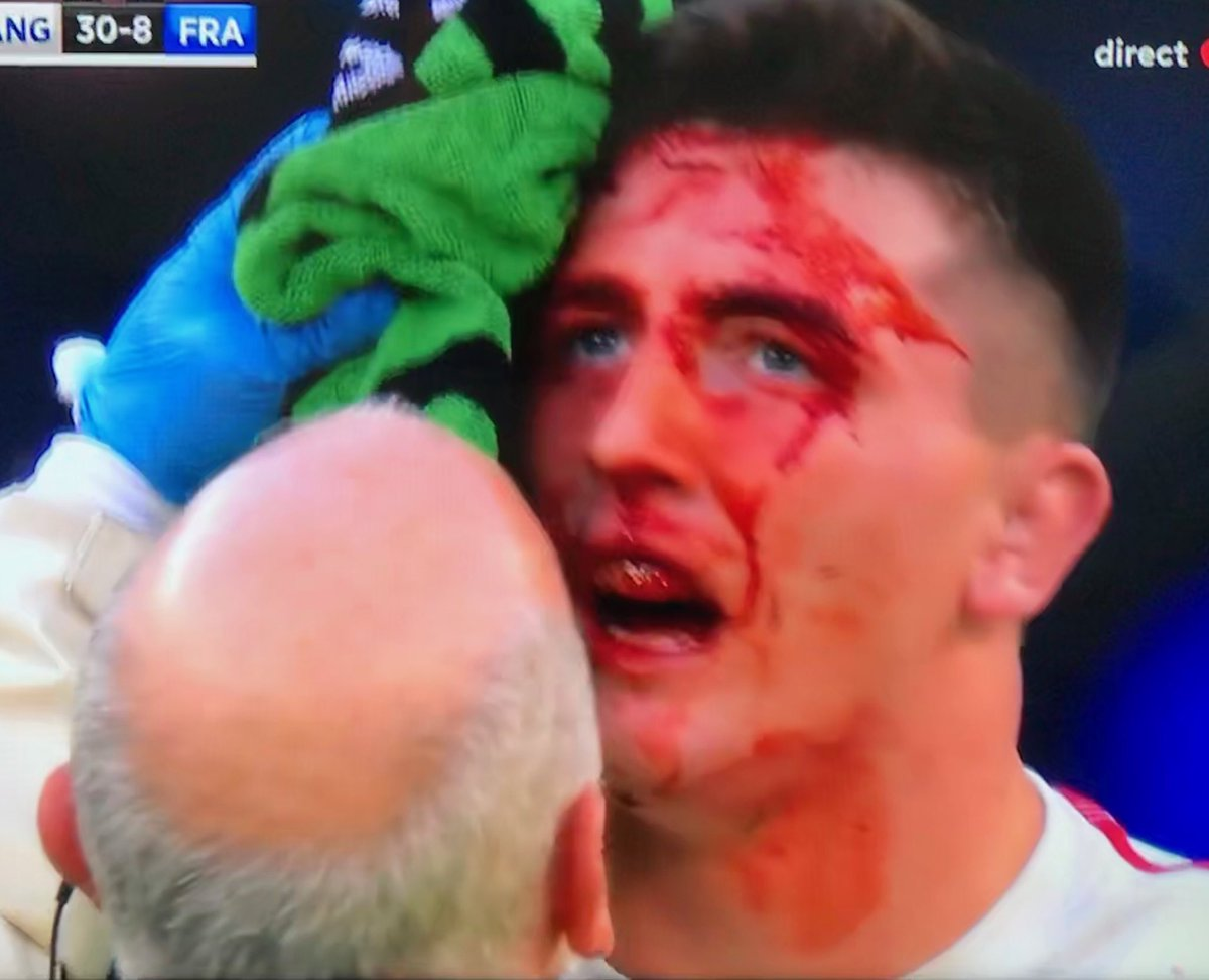 Forçat du rugby français's photo on #Crunch