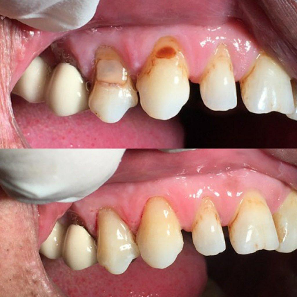 Class V composite restoration on both teeth no  #13 &