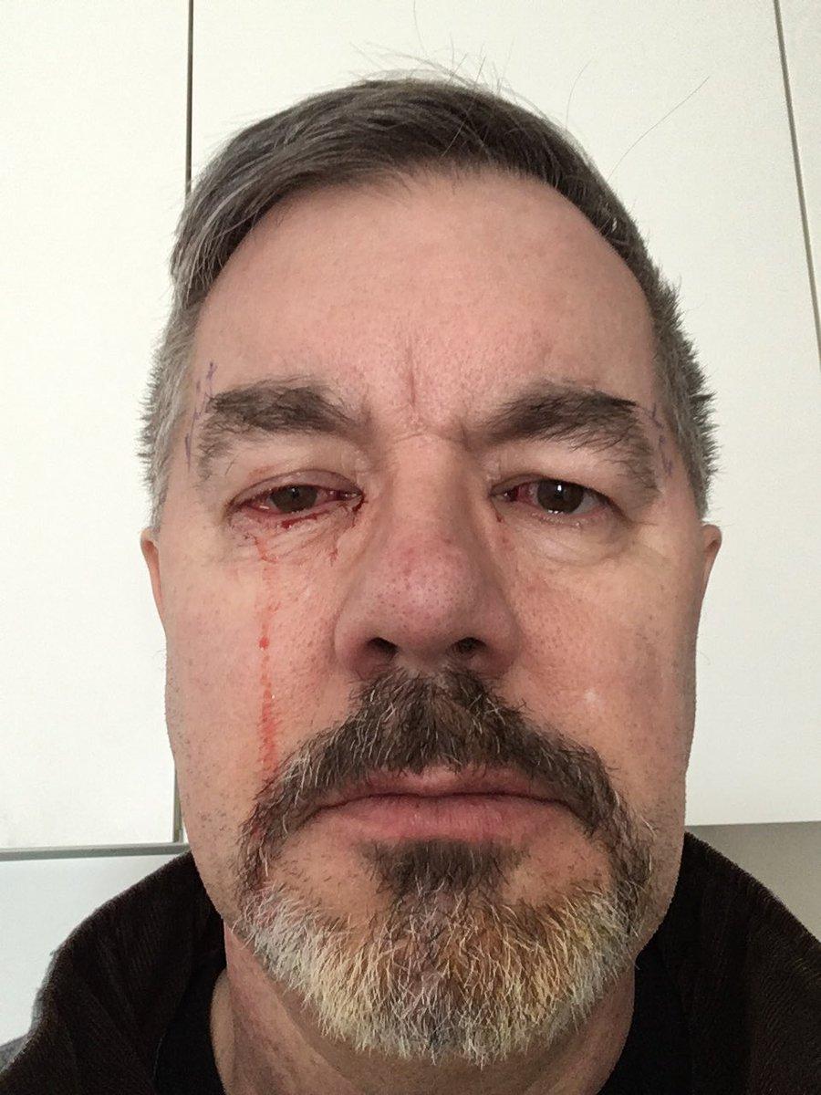 surgery to correct lazy eye