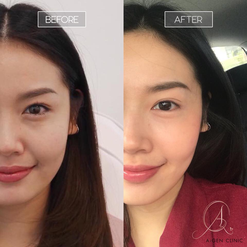 Your V-shape would bring new look with Botox as suggested amount of, reducing jaw muscle in 2 weeks.#chiangmai #chiangmai #reviewchiangmai #botoxเชียงใหม่ #hifuเชียงใหม่<br>http://pic.twitter.com/V5wE8cqCLQ