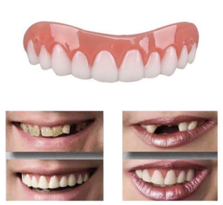 Get the perfect smile with these snap on veneers 😃 and best of all they are ONLY £3.99 😱😱  Check them out here - https://www.awin1.com/cread.php?awinmid=3595&awinaffid=508309&clickref=Mf&p=https%3A%2F%2Fwww.wowcher.co.uk%2Fdeal%2Fglasgow%2F10509282%2Fsnap-veneers-3-99%3Fusr_src%3Dsearch …