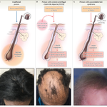 Image for the Tweet beginning: Editorial: Genetic Susceptibility to Alopecia