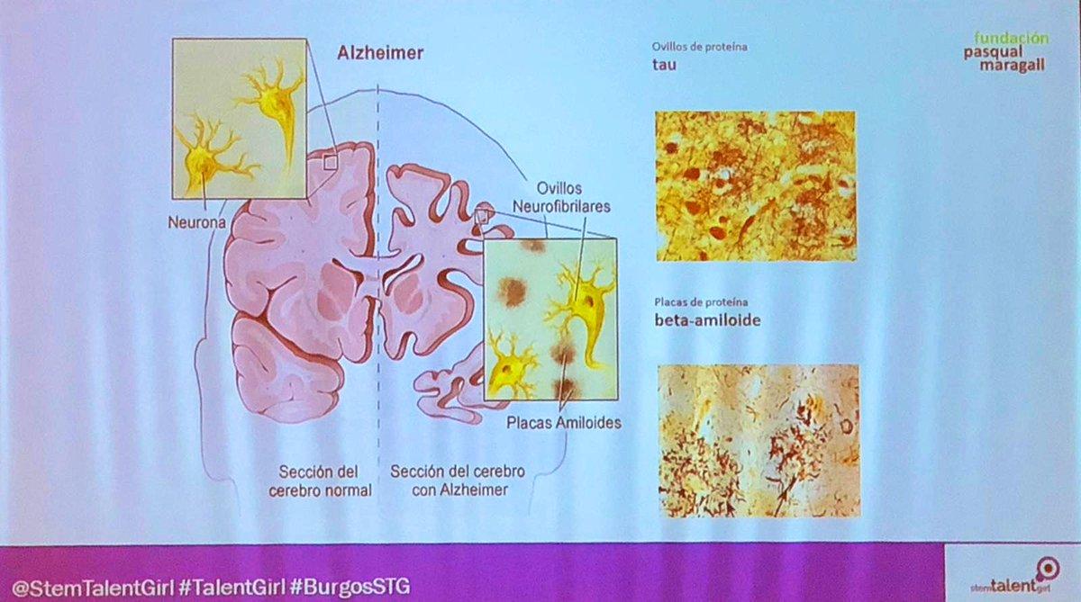 No sabemos las causas del #Alzheimer , ni medicamentos que paralicen la emfermedad, aunque sabemos que solo un 1% se debe a la genética.   Aún así, cambiando hábitos de vida, podríamos evitar muchos casos.   Gloria Oliver de @fpmaragall   #TalentGirl #BurgosSTG