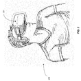 Image for the Tweet beginning: Patent describing the use of