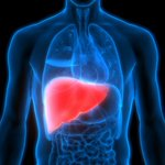 Image for the Tweet beginning: Fatty liver disease: What it