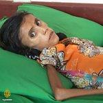 12歳にもかかわらず体重が10キロしかない飢餓に苦しむ少女