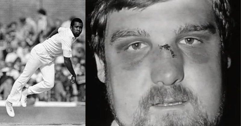 गेंदबाज़ की बाउंसर उठी और सीधे बल्लेबाज़ की नाक पर जा लगी ठक्क!  [हड्डी भी टूटी और मैच भी हारे.]  https://www.thelallantop.com/bherant/when-malcolm-marshalls-bouncer-broke-mike-gattings-nose-in-england-vs-west-indies-one-day-match-in-1986/…