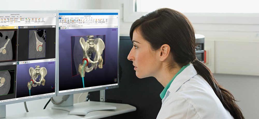 Medical software launched which aids device creation and implant design https://buff.ly/2tzk69L  @MPN_Magazine