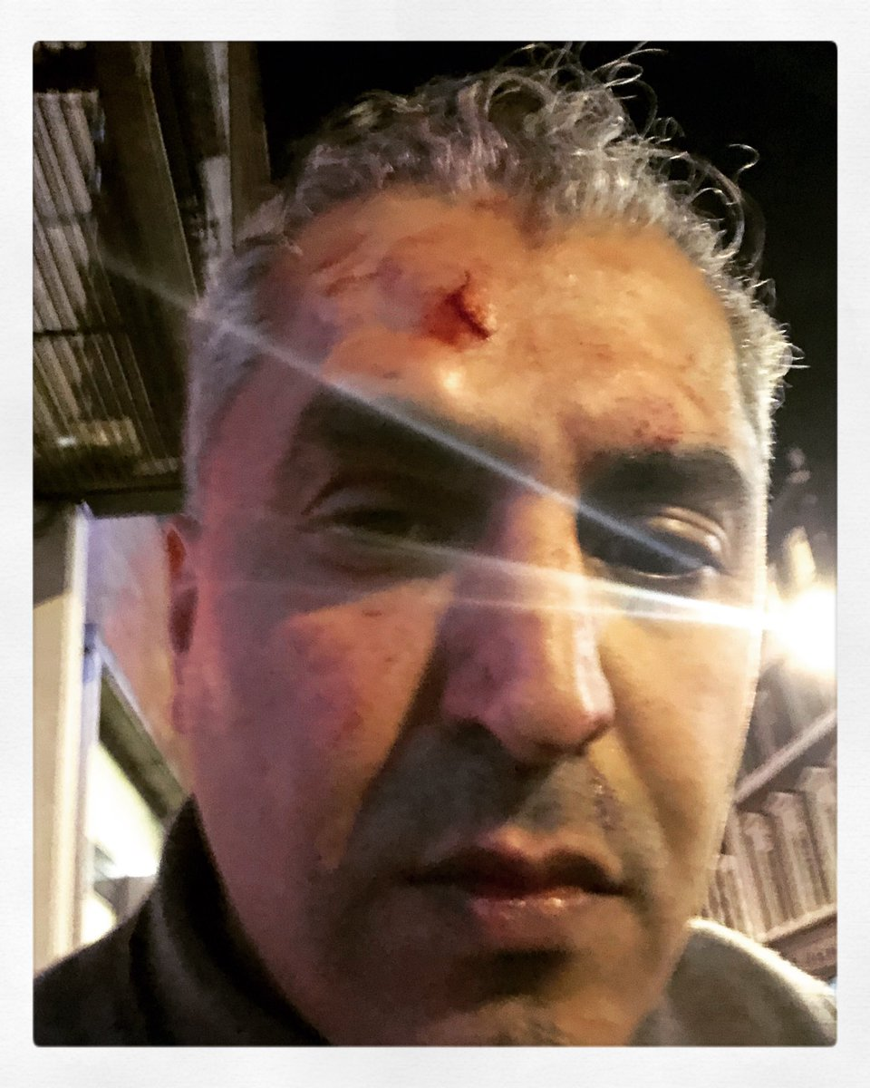 "Tonight I was racially attacked while alone outside Soho theatre, from behind, as I bent down to pick up my phone. The white male assailant called me a ""fucking Paki"" as he hit me in the face with maybe a signet ring & ran away like a coward. He took nothing. He was just a racist"