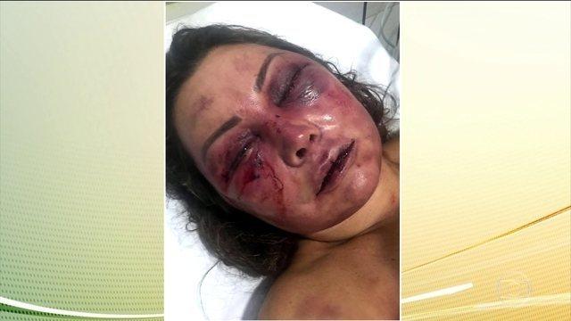 Mulher espancada por quatro horas permanece internada em Centro de Terapia Intensiva. A vítima foi agredida na noite do primeiro encontro. O agressor foi preso em flagrante: https://t.co/YZRJiYU1aj #JH  #JornalHoje