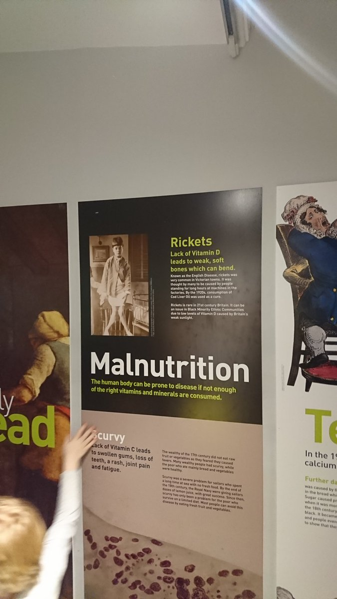 Museum today had a display about rickets, which is cool because the Tories are bringing it back as part of their nostalgia drive.