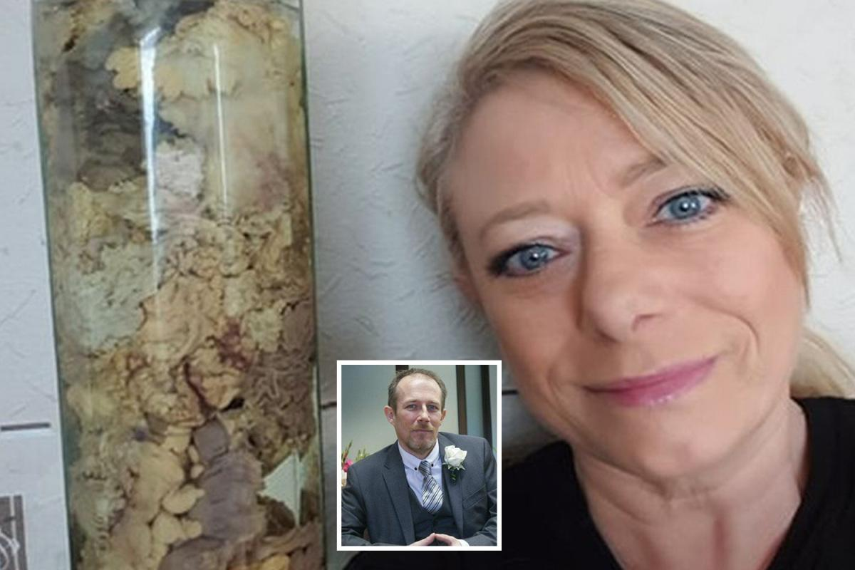 Woman keeps her husband's BOWEL preserved in jar as memento after he died of sepsis  https://t.co/Wei9OyXljN
