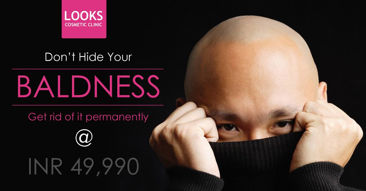 Get rid of #Baldness #Permanently Now @49,990, No #Cut or #Scar, Biotech #Hair #Transplant #Method, #Dense & #Natural #Result, Free #Scalp #Assessment & #Consultation, Book #Appointment Today @8828126315