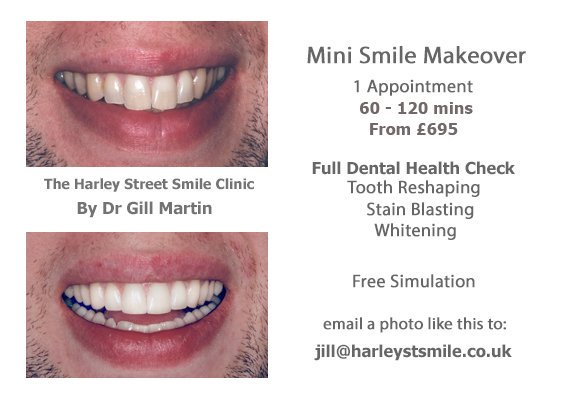#Minismilemakeover #teethexperts #whitening #toothcontouring #stainblasting #sendapic #freeimaging #freeconsultation #teethonfleek #teethexperts #harleystsmile #tuesdaySelfie #getsnapping #London