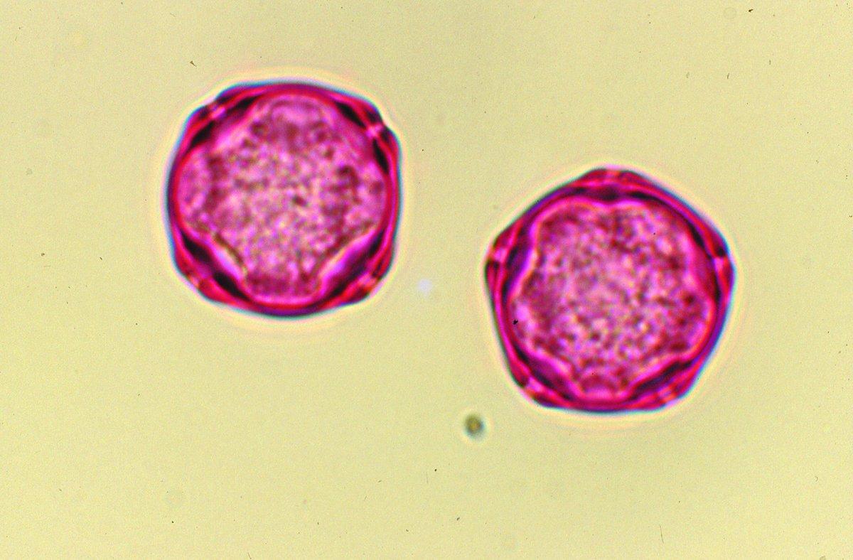 Réseau National de Surveillance Aérobiologique ( rnsa pollen)   Twitter 596fddec026