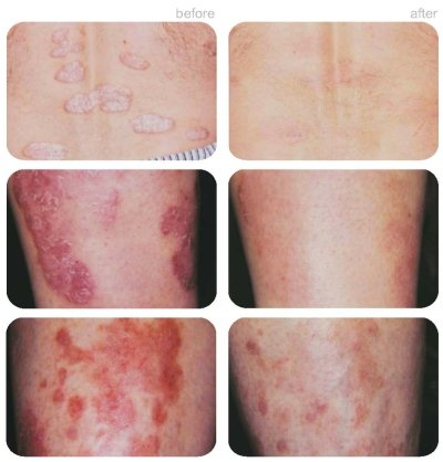 light treatment for psoriasis