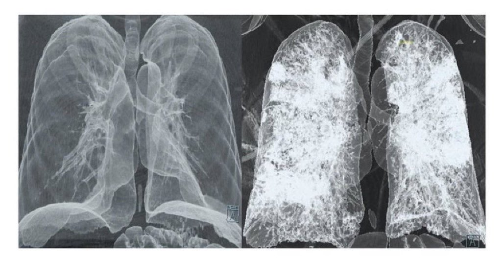These are your lungs.  These are your lungs on COVID.  Any questions?   #GetVaccinated https://t.co/FqrG96PeLo