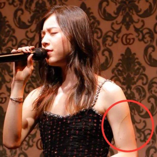 milet(ミレイ)の左腕の傷は怪我?髪の毛?インスタの写真に筋が!