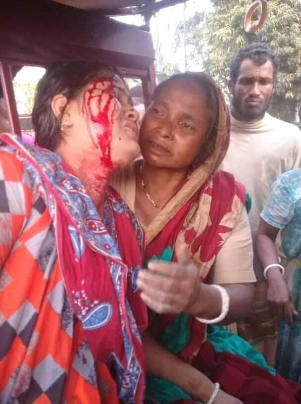 Where is Law ? Is it Bengal or Pakistan ?? Very Bad Situation.... #ArrestMamata https://t.co/ojoqJj25ao