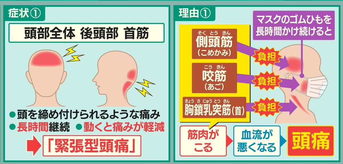 マスクによる頭痛・首筋の痛み