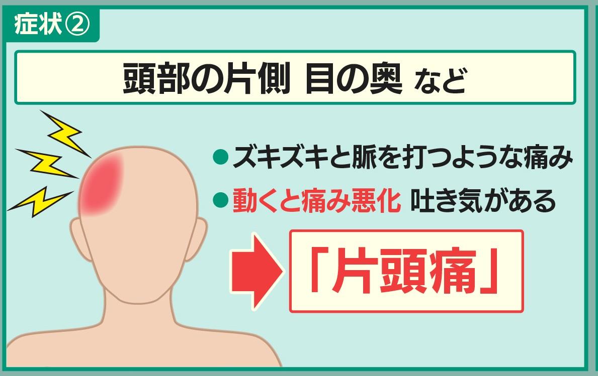 マスクによる片頭痛