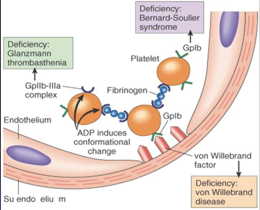"تويتر \ Aaron Goodman - ""Papa Heme"" على تويتر: ""Bernard-Souiler vs Glanzman  Thrombasthenia USMLE Both congenital and on tests Bernard-Souiler  Deficiency GP1b/V/IX binds VWF Thrombocytopenia. Large platelets Platelet  function defect Glanzmann Deficiency"