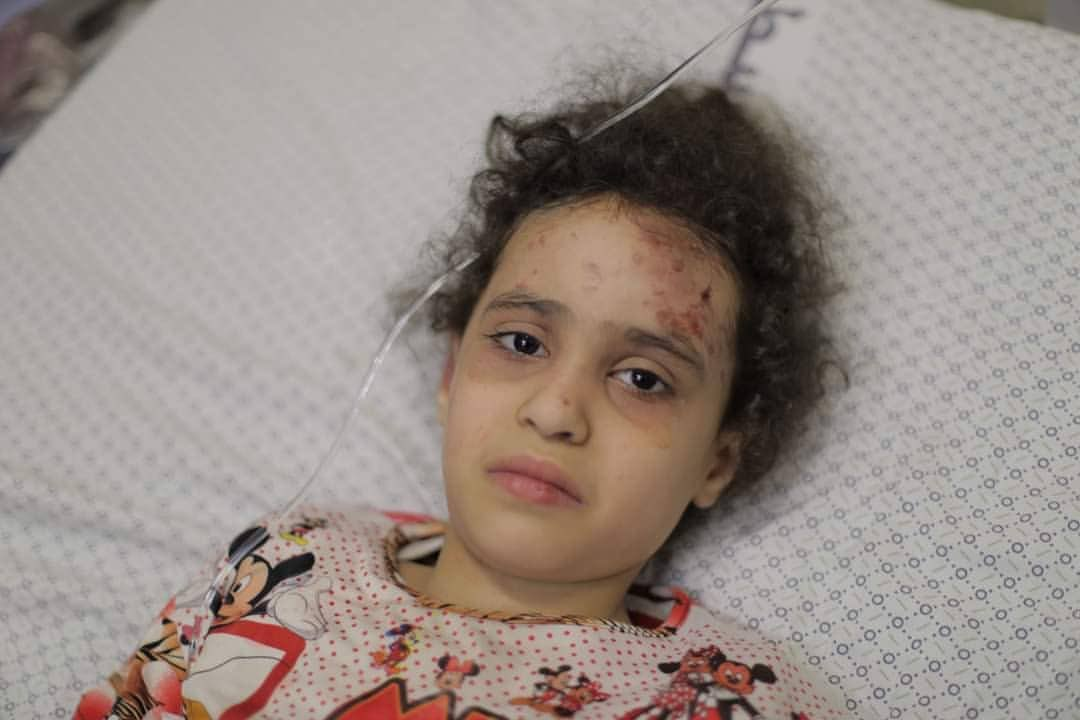 After 10 hours under the rubble, Suzy Riad Ashkantna is back to life surviving a deadly attack on civilians in Al-Wehda street by Israeli warplanes last night. #GazaUnderAttack https://t.co/uVdhv81UYm