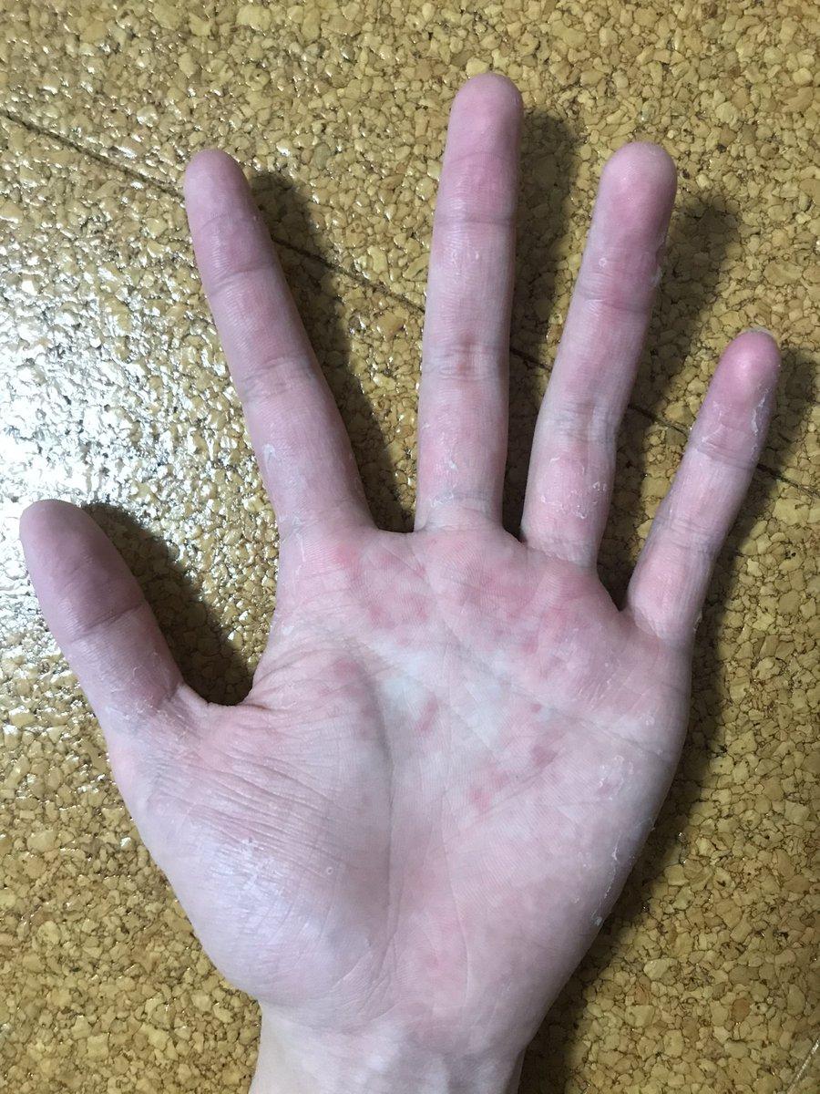 痒い 手 が 手のひらがかゆい・スピリチュアルメッセージ 福じぞう note